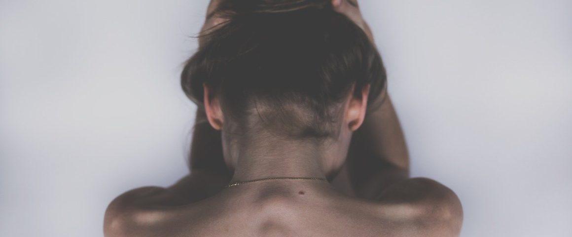 calvitie de la femme