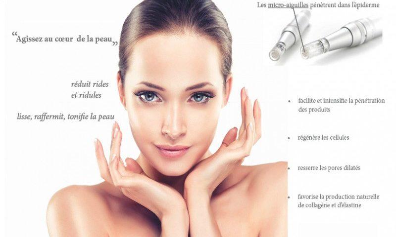 mésothérapie du visage