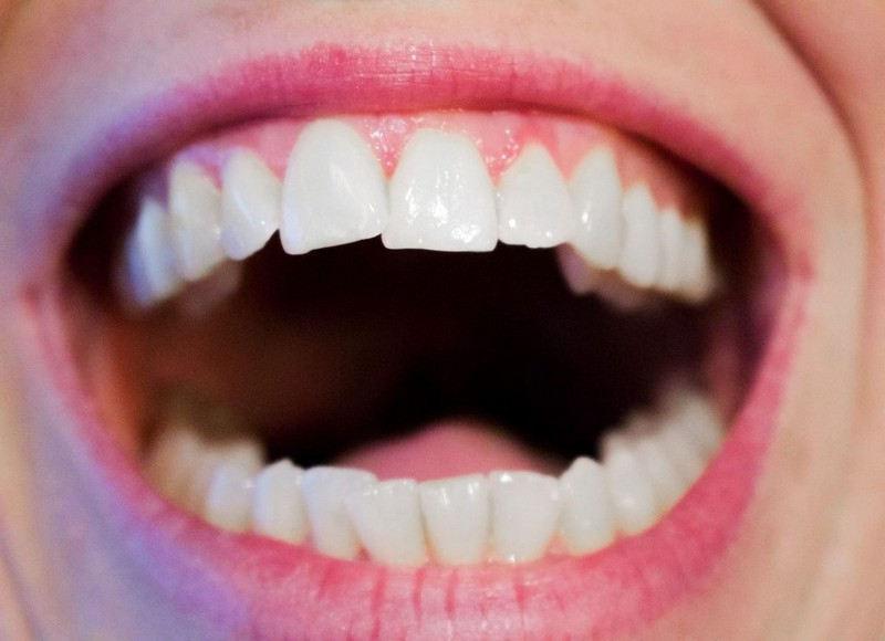 Pratiques dentisterie holistique